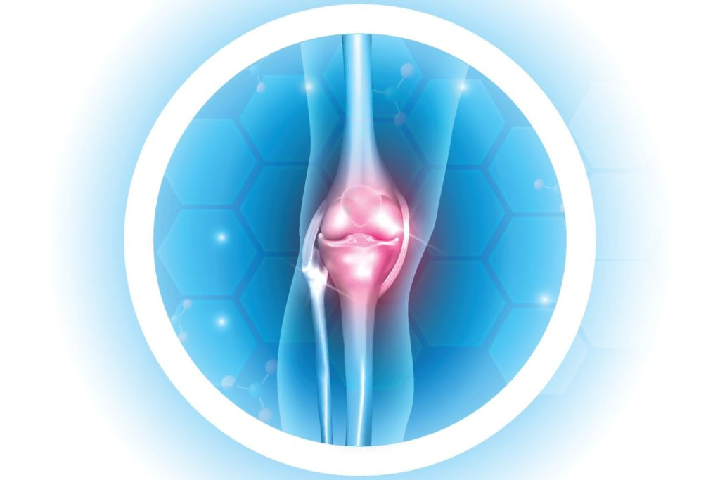 Лечение артрита: методы