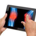 Симптомы остеоартртира