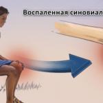 Типы артрита, которые влияют на колено